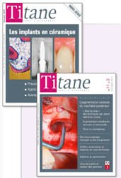 ABONNEMENT INTERNATIONAL + DOM-TOM : Revue Titane Numéro 1 en implantologie