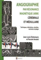 Angiographie par résonance magnétique (ARM) cérébrale et médullaire