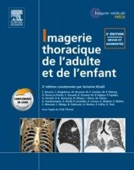Imagerie thoracique