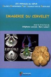 Imagerie du cervelet