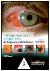 Inflammations oculaires du diagnostic au traitement