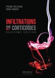 Infiltrations de corticoïdes