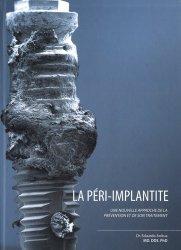 La péri implantite