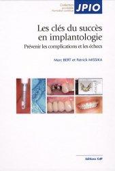 Les clés du succès en implantologie