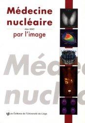 Médecine nucléaire par l'image