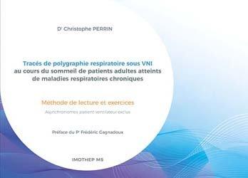 Tracés de polygraphie respiratoire sous VNI