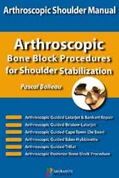 Arthroscopic bone block procedures for shoulder stabilization