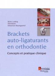Brackets auto-ligaturants en orthodontie