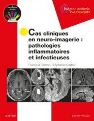 Cas cliniques en neuro-imagerie : pathologies inflammatoires et infectieuses