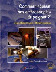 Comment réussir ses arthroscopies de poignet ?