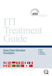 DVD ITI - Sinus floor elevation procedures