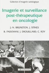 Imagerie et surveillance post-thérapeutique en oncologie