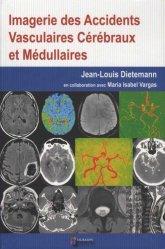 Imagerie des accidents vasculaires cérébraux et medullaires