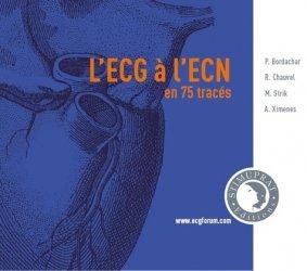 L'ECG à l'ECN