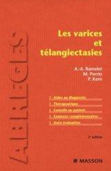 Les varices et télangiectasies