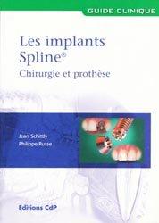 Les implants Spline Chirurgie et prothèse