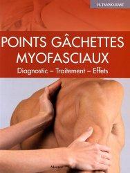 Points gâchettes myofasciaux