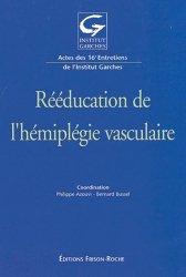 Rééducation de l'hémiplégie vasculaire