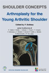 Shoulder concepts arthroplasty for the young arthritic shoulder