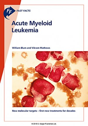 Acute myeloid leukemia-karger -9781910797594