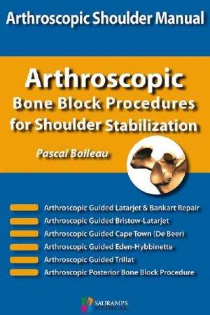 Arthroscopic bone block procedures for shoulder stabilization-sauramps medical-9791030301663