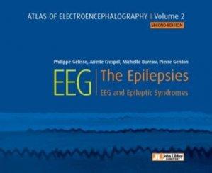Atlas of electroencephalography Volume 2 : The Epilepsies-john libbey eurotext-9782742015917