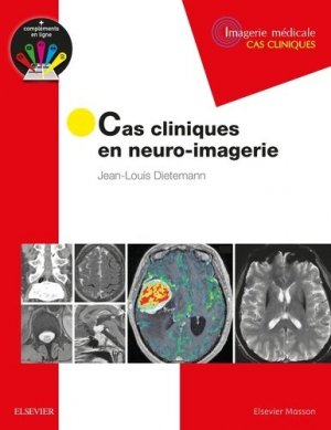 Cas cliniques en neuro-imagerie-elsevier / masson-9782294751998