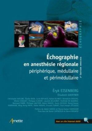 Échographie en anesthésie régionale-arnette-9782718415055