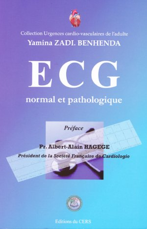 ECG normal et pathologique-du cers-2302953877301