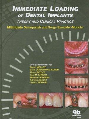 Immediate Loading of Implant Dentistry-quintessence publishing-9782912550507