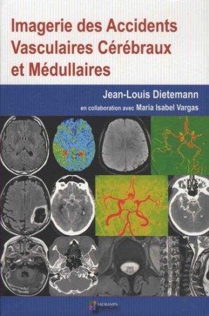 Imagerie des accidents vasculaires cérébraux et médullaires - sauramps medical - 9791030301762