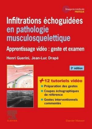Infiltrations échoguidées en pathologie musculosquelettique-elsevier / masson-9782294759987