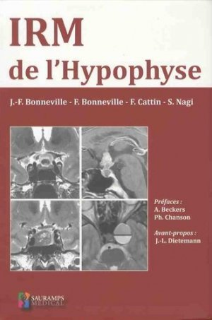 IRM de l'hypophyse - sauramps medical - 9791030301281