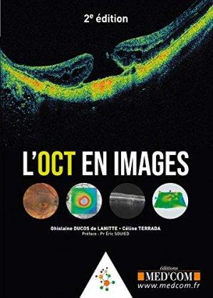 L'OCT en images - med'com - 9782354032678