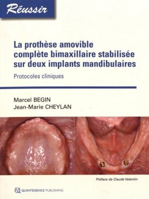 La prothèse amovible complète bimaxillaire stabilisée sur deux implants-quintessence international-9782366150506