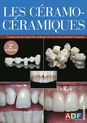 Les Céramo-céramiques-association dentaire francaise - adf-2224836309702