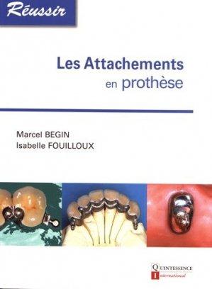 Les attachements en prothèse-quintessence international-9782912550934