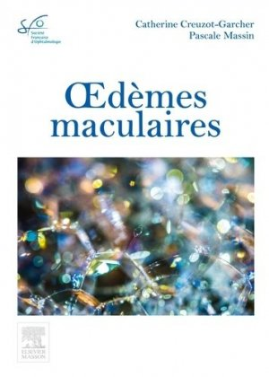 Oedèmes maculaires-elsevier / masson-9782294749490