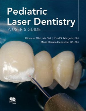 Pediatric Laser Dentistry: A User's Guide - quintessence publishing - 9780867154948