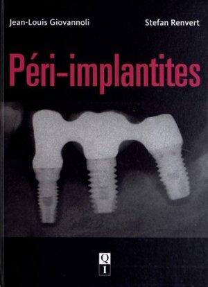 Péri-implantites-quintessence international-9782912550965
