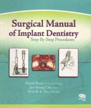 Surgical Manual of Implant Dentistry - quintessence publishing - 9780867153798