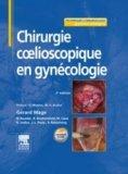 Chirurgie coelioscopique en gynécologie