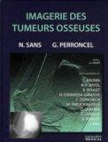 Imagerie des tumeurs osseuses