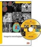 Imagerie neurologique