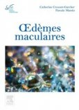 Oed�mes maculaires