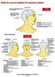 Planche des zones de stimulation de l'acupuncture crânienne