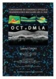 Tomographie en Cohérence Optique OCT et DMLA